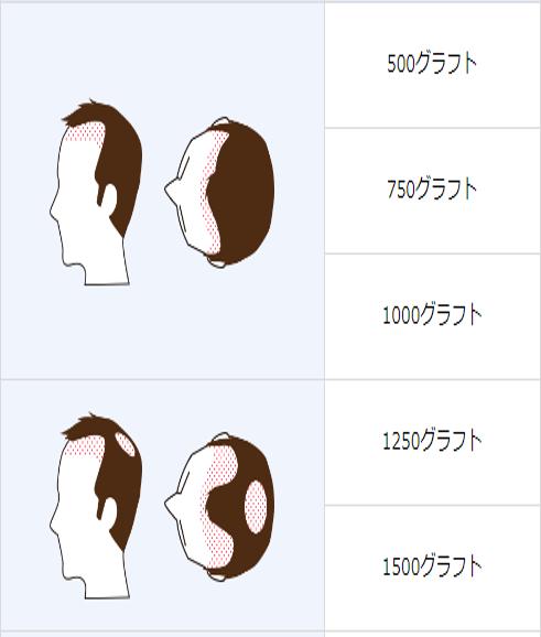 自毛植毛「500グラフト」「750グラフト」「1000グラフト」「1250グラフト」「1500グラフト」