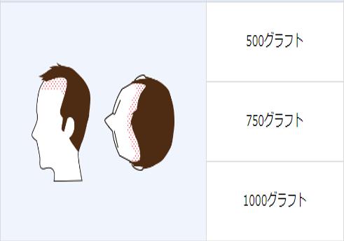自毛植毛「500グラフト」「750グラフト」「1000グラフト」