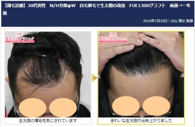 自毛植毛、AGA・薄毛治療の「湘南美容クリニック」症例写真