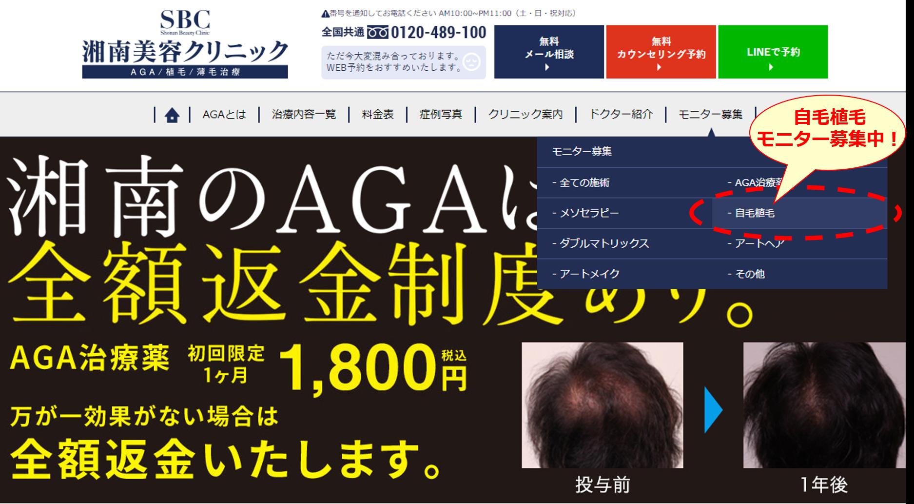 自毛植毛、AGA・薄毛治療の「湘南美容クリニック」では自毛植毛モニター募集中