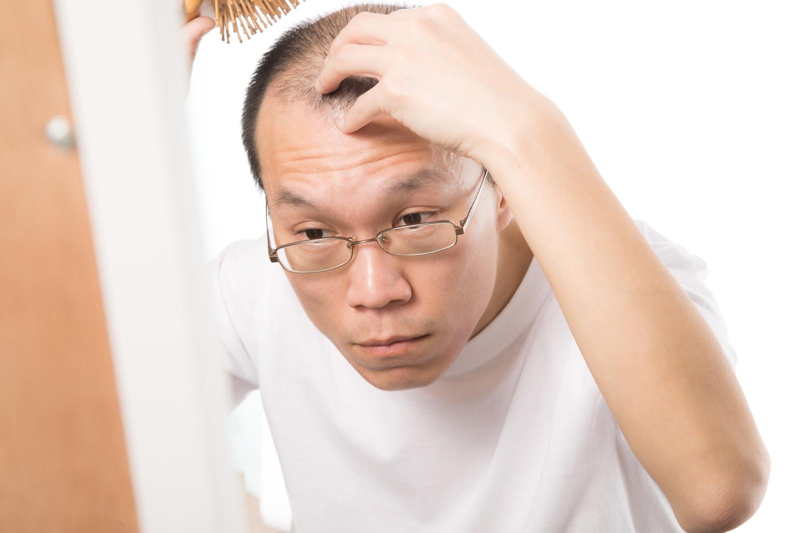 ビュリクシールの効果とは?最大配合の薄毛治療サプリ「SHEE+」が安いのは?比較4選