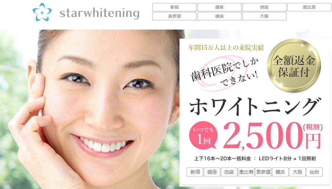 歯科医院でしかできないホワイトニング「スターホワイトニング」