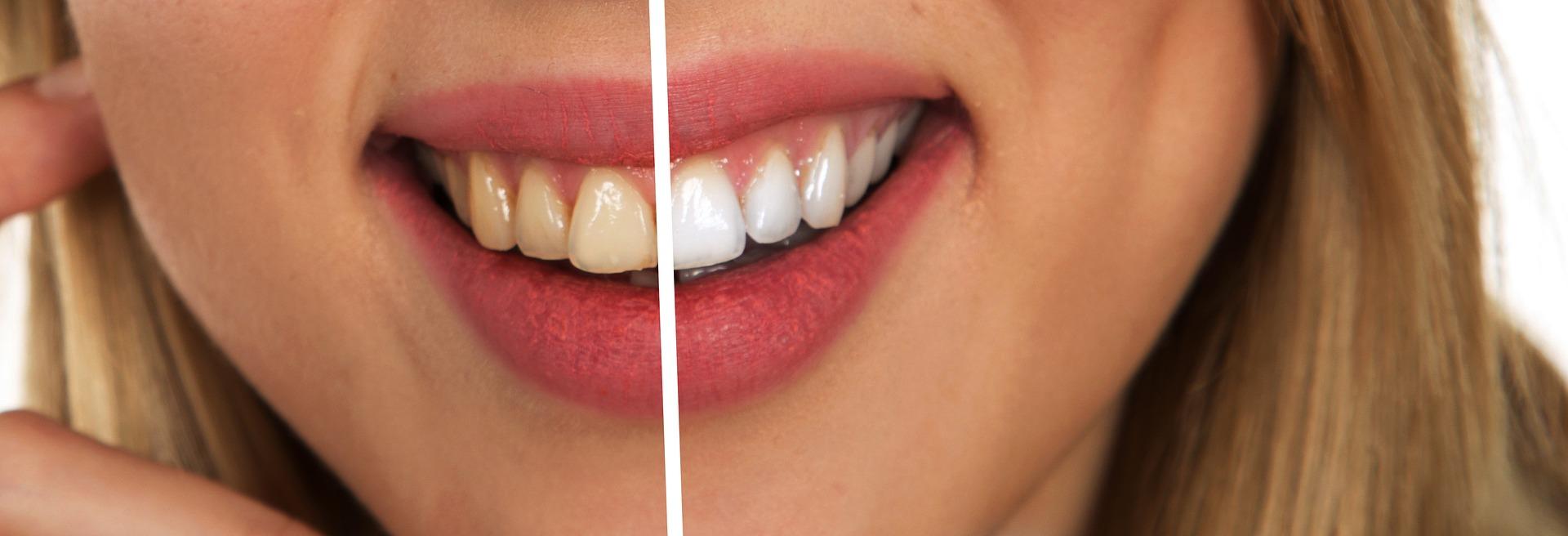 日本人の歯は汚い?ホワイトニングの種類や、治療費・料金が安いクリニック比較
