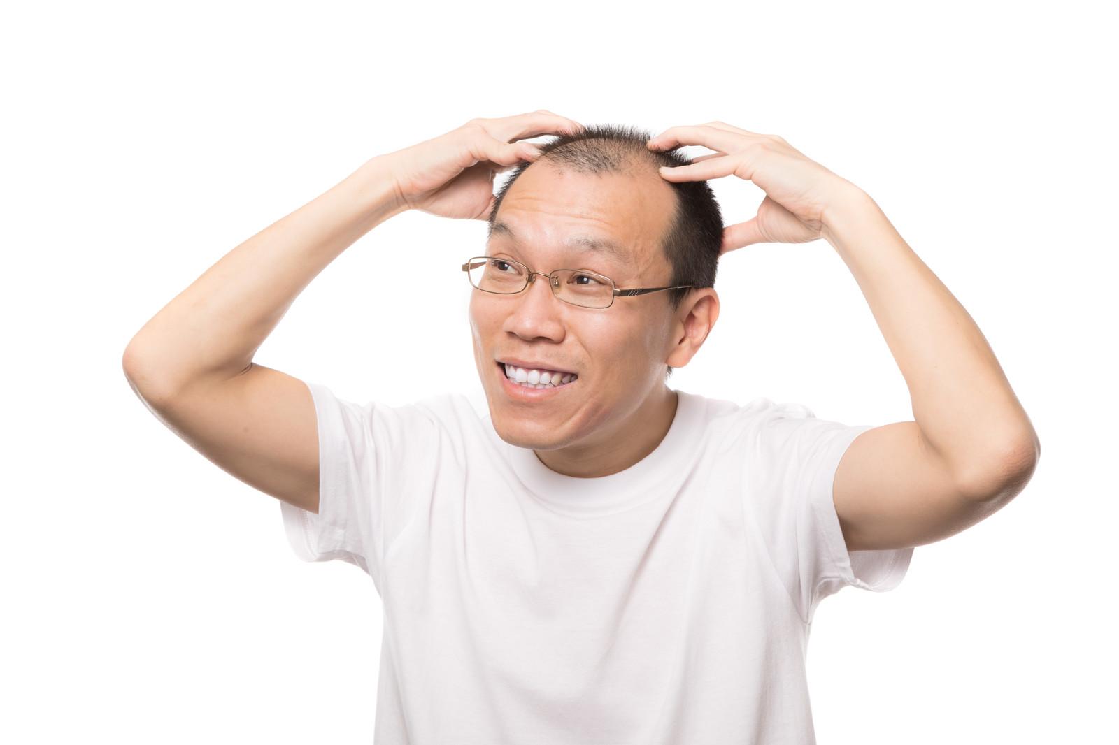 ハゲはモテないは本当か?行う事が勧められているAGA治療・薄毛対策4選