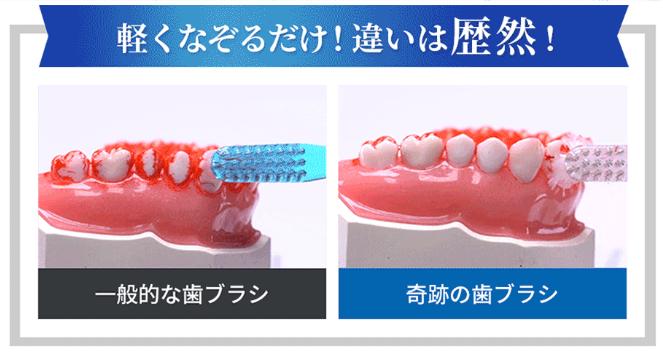 なぞるだけで汚れが落ちる歯ブラシの定期便「奇跡の歯ブラシ」一般的な歯ブラシとの違い